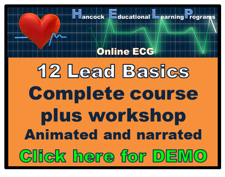 Basic 12 lead ekg ecg online course