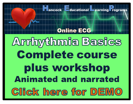 Basic arrhythmia ekg ecg online course